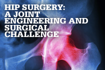 Hip Surgery: A Joint Engineering and Surgical Challenge